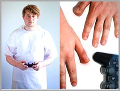 CASE #3 Playstation Thumb