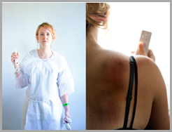 CASE #4 WiiMote Shoulder Dislocation