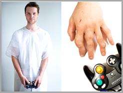 CASE #8 Nintendo Arthritis